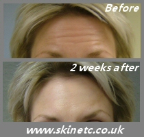 Botox treatment of frown lines